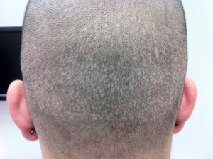 FUE Scar before Scalp MicroPigmentation