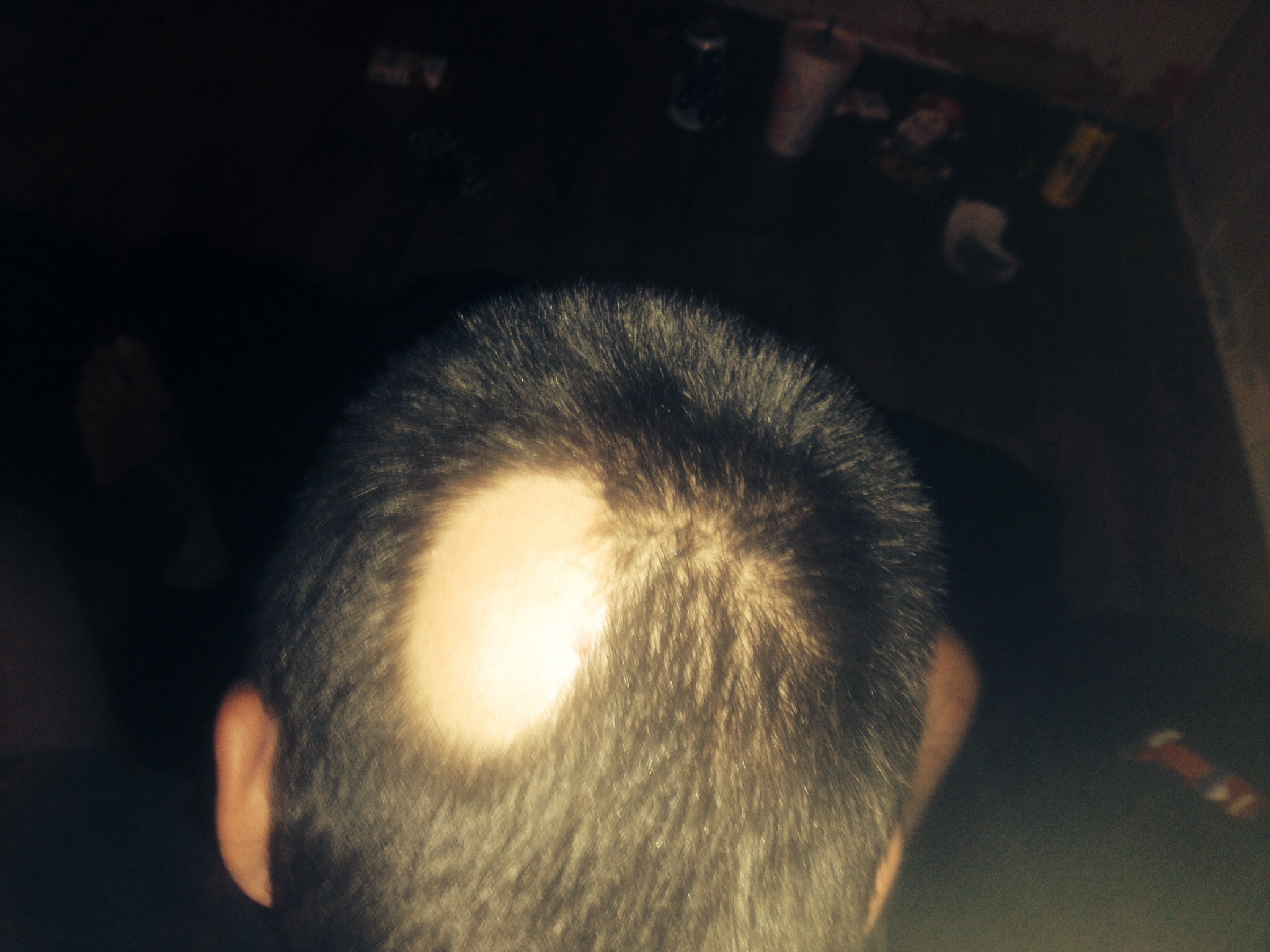 I Got A Hair Cut And I Noticed A Bald Spot Wrassmanmd