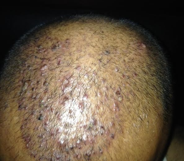 Tinea Capitis (Scalp Ringworm, Hair Fungal Infection) Pictures