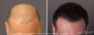 SMP Scalp Micropigment with FUE Hair Transplant for Fullness for Long Hair