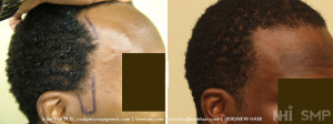 hair transplant side burn