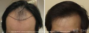 Hair Transplant at NHI - Asian Hair