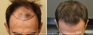 Hair Transplant at NHI with about 1500 grafts