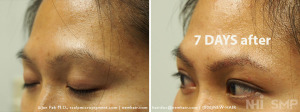 NHI Eyebrow Transplant  7 DAYS after 300+ grafts