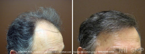 New Hair Institute Review of 1657 graft  Hair Transplant