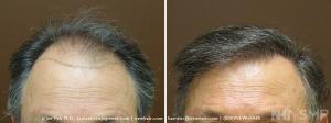 New Hair Institute Review of 1657 graft  Hair Transplant