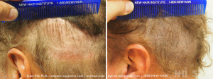 Scalp MicroPigmentation to scar