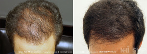 NHI_Scalp_MicroPigmentation_146