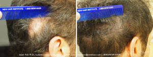NHI_Scalp_MicroPigmentation_Scar_146