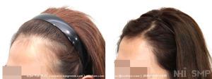 1400 graft female hair line lower and rounding by Dr. Jino Kim (NHI Seoul Korea)