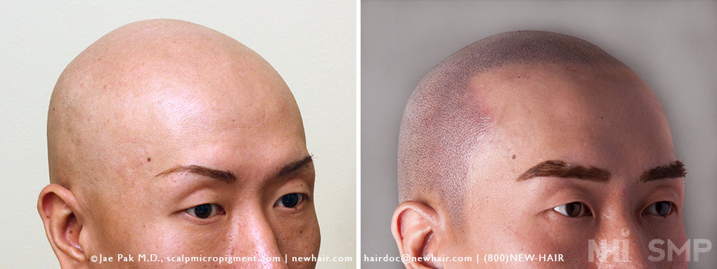 Smp Review Of Alopecia Totalis