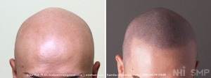 Scalp MicroPigmentation for Alopecia Totalis