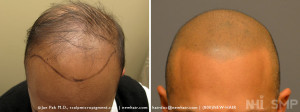 NHI Scalp MicroPigmentation Before After