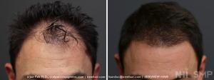 New Hair Institute Review of 1420 graft  Hair Transplant