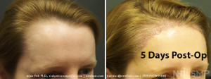 New Hair Institute Female Temple Corner Rounding 1000 grafts - 5 DAYS Post Op