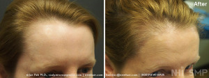 New Hair Institute Female Temple Corner Rounding 1000 grafts - 7 MONTHS Post Op