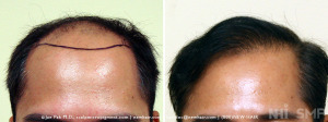Hair Transplant at NHI 2100 grafts