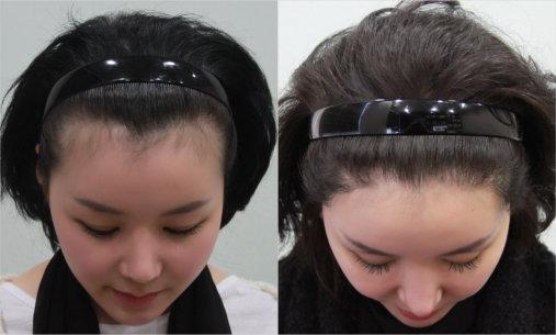 Hairline Lowering For Women Wrassman M D Baldingblog