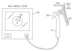 robot_artas®_patent