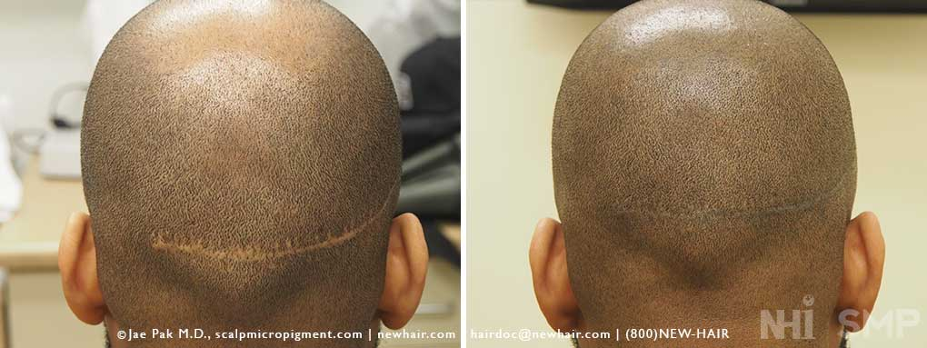 Hair transplant in dubai review