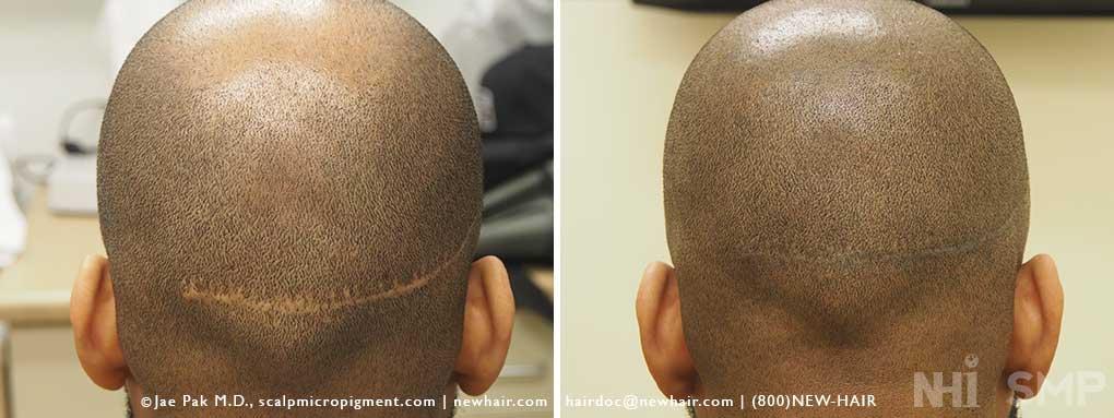 Hair transplant in dubai review
