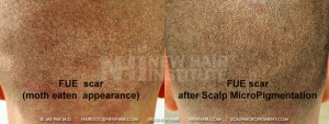 FUE scar fixed with SMP