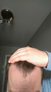 FUE 1200 grafts recommended by one doctor