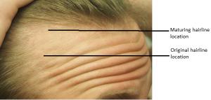 Hairline2