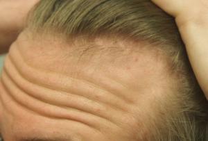 Hairline3