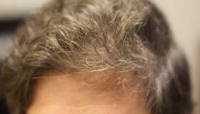 hair22