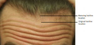 hairline1