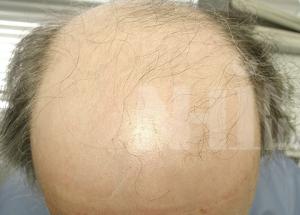 Class 6 pattern of balding patient