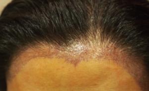 Female Hairline 1