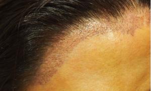female hairline 2