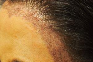 female hairline 3