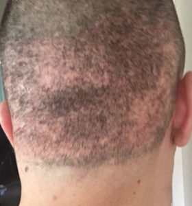 moth eaten scars following FUE megasession