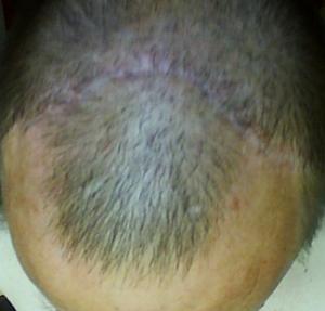 forehead lift scar