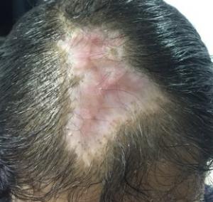 scalp necrosis