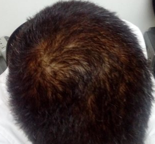 What is happening to my hair? I'm only 21 years old (with ...