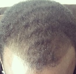 African American with hair thinning. Finasteride may reverse it.