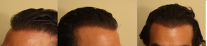 after hairline repair