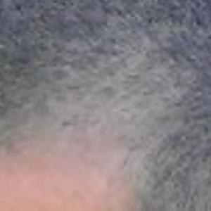 corner hairline shaved