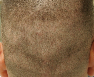 fue scars before