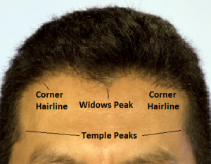 hairline labels