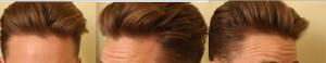 handsome man with no balding