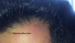 normal vellus hairs