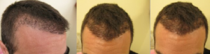 unhappy hairline