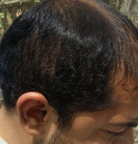Reversed_complication of FUE