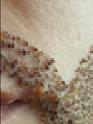 beard transplant with crusts