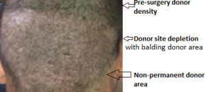 depleted donor area 6